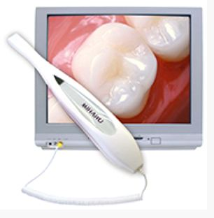 Intraoral Camera  Digital  Image  Technology